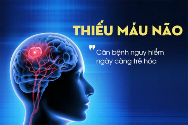 Bệnh thiếu máu não: 6 triệu chứng không thể coi thường